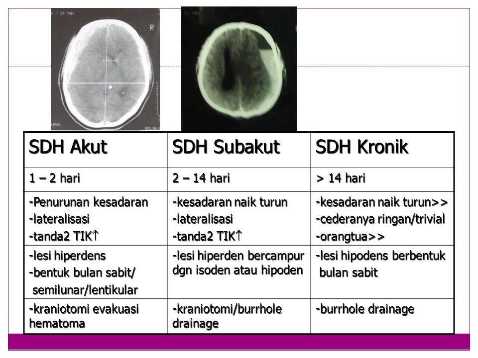 SDH Akut SDH Subakut SDH Kronik 1 – 2 hari 2 – 14 hari > 14 hari -Penurunan kesadaran -lateralisasi -tanda2 TIK  -kesadaran naik turun -lateralisasi -tanda2 TIK  -kesadaran naik turun>> -cederanya ringan/trivial -orangtua>> -lesi hiperdens -bentuk bulan sabit/ semilunar/lentikular semilunar/lentikular -lesi hiperden bercampur dgn isoden atau hipoden -lesi hipodens berbentuk bulan sabit bulan sabit -kraniotomi evakuasi hematoma -kraniotomi/burrhole drainage -burrhole drainage