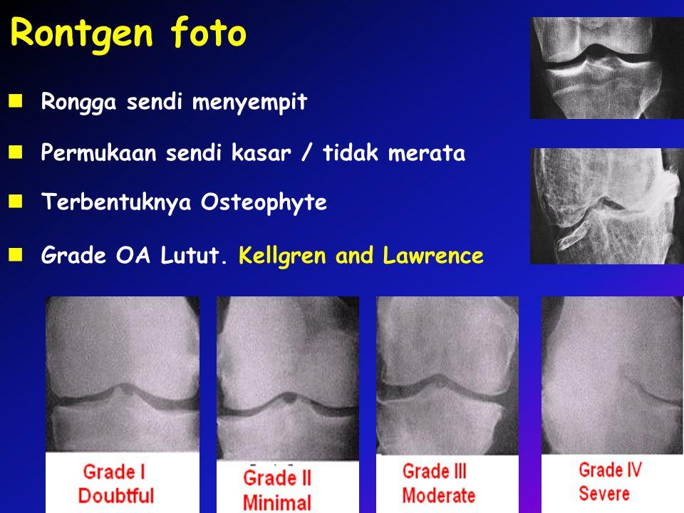 Rontgen foto Grade OA Lutut. Kellgren and Lawrence Rongga sendi menyempit Permukaan sendi kasar / tidak merata Terbentuknya Osteophyte