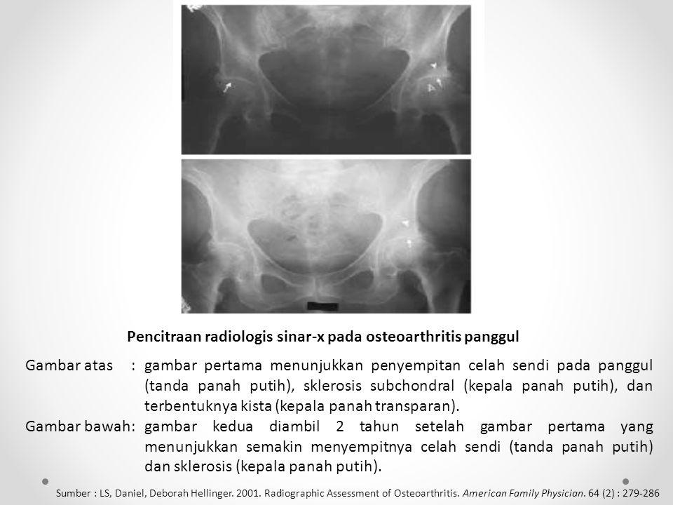 Pencitraan radiologis sinar-x pada osteoarthritis panggul Gambar atas:gambar pertama menunjukkan penyempitan celah sendi pada panggul (tanda panah putih), sklerosis subchondral (kepala panah putih), dan terbentuknya kista (kepala panah transparan).