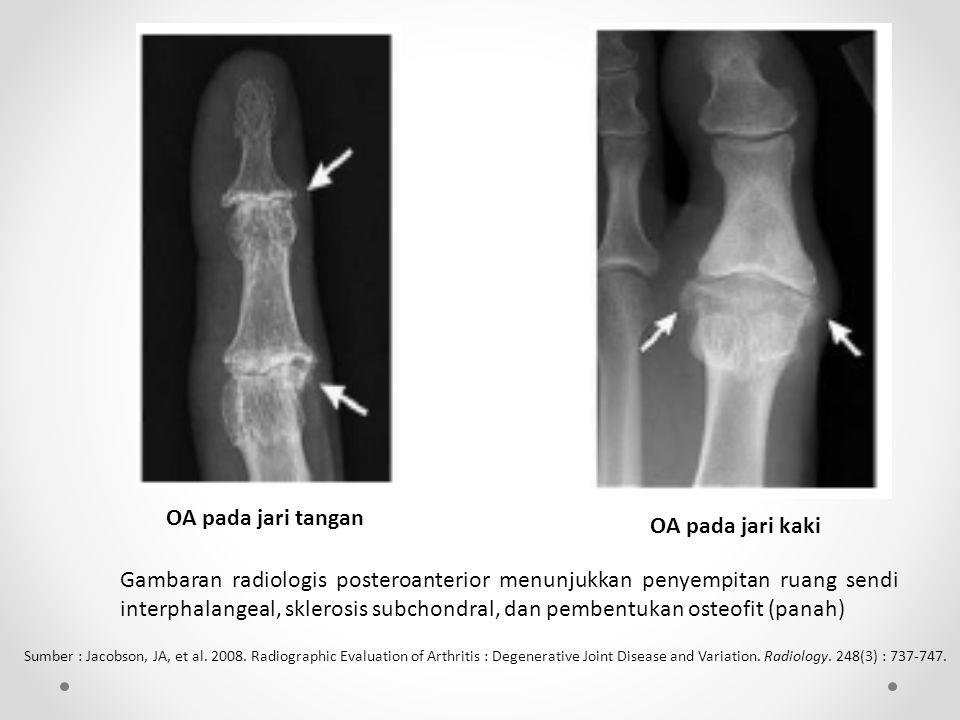 OA pada jari tangan OA pada jari kaki Gambaran radiologis posteroanterior menunjukkan penyempitan ruang sendi interphalangeal, sklerosis subchondral, dan pembentukan osteofit (panah) Sumber : Jacobson, JA, et al.