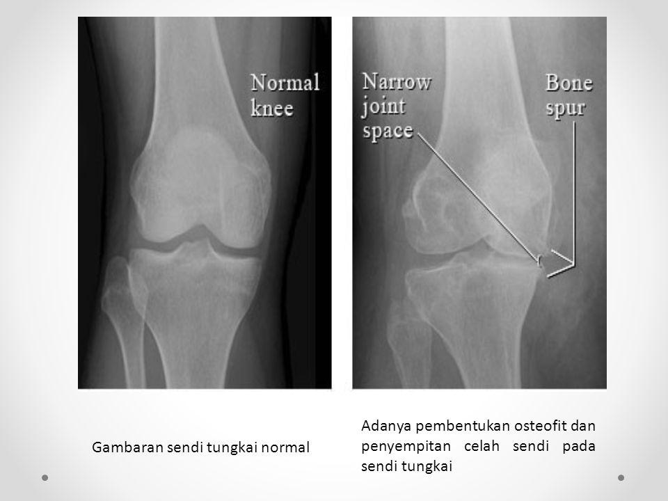 Adanya pembentukan osteofit dan penyempitan celah sendi pada sendi tungkai Gambaran sendi tungkai normal
