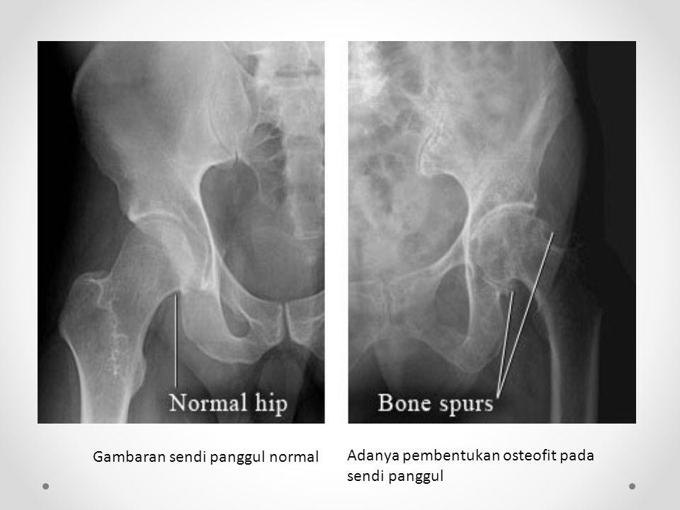 Gambaran sendi panggul normal Adanya pembentukan osteofit pada sendi panggul