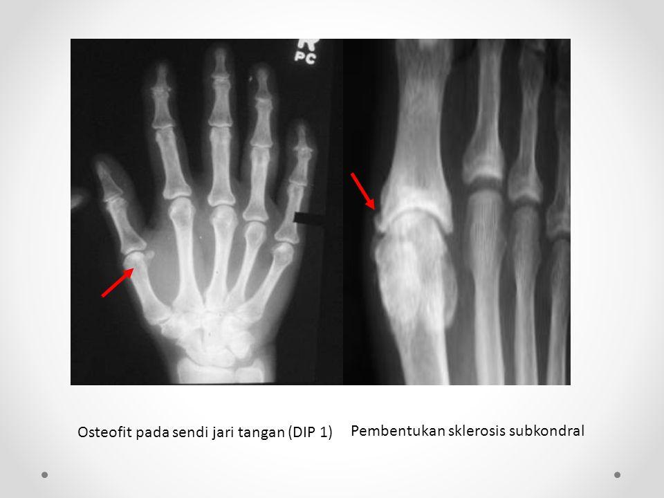 Osteofit pada sendi jari tangan (DIP 1) Pembentukan sklerosis subkondral
