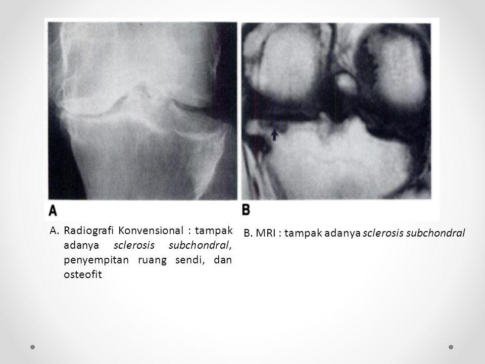 A. Radiografi Konvensional : tampak adanya sclerosis subchondral, penyempitan ruang sendi, dan osteofit B. MRI : tampak adanya sclerosis subchondral