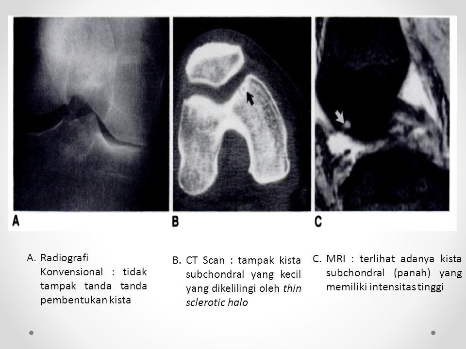 A.Radiografi Konvensional : tidak tampak tanda tanda pembentukan kista B.