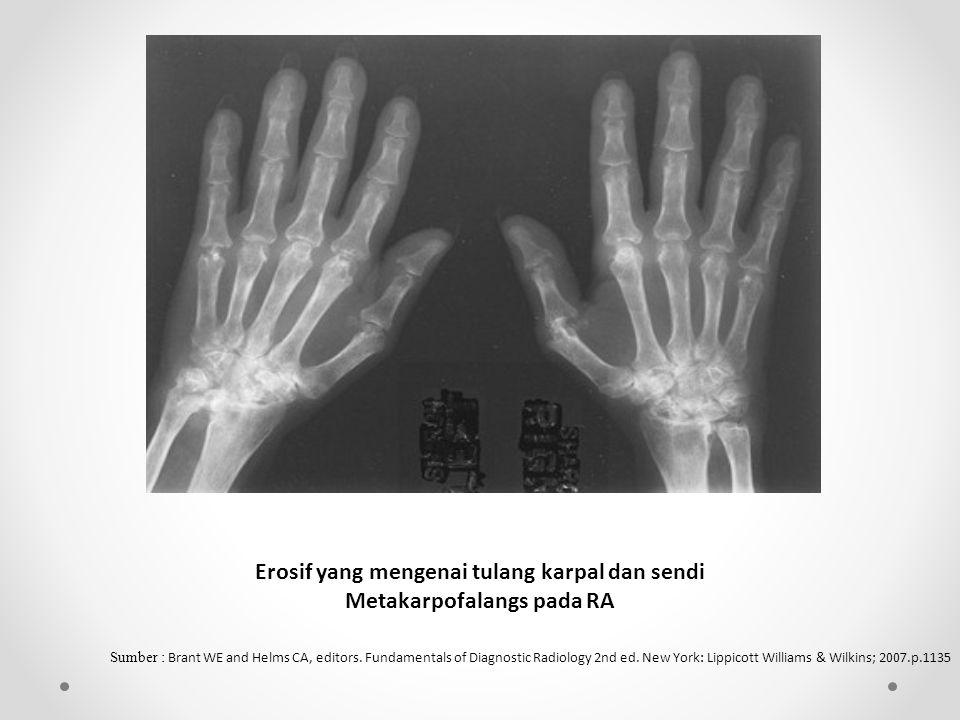 Erosif yang mengenai tulang karpal dan sendi Metakarpofalangs pada RA Sumber : Brant WE and Helms CA, editors.