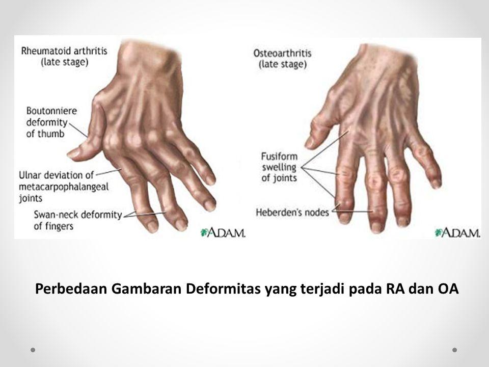 Perbedaan Gambaran Deformitas yang terjadi pada RA dan OA