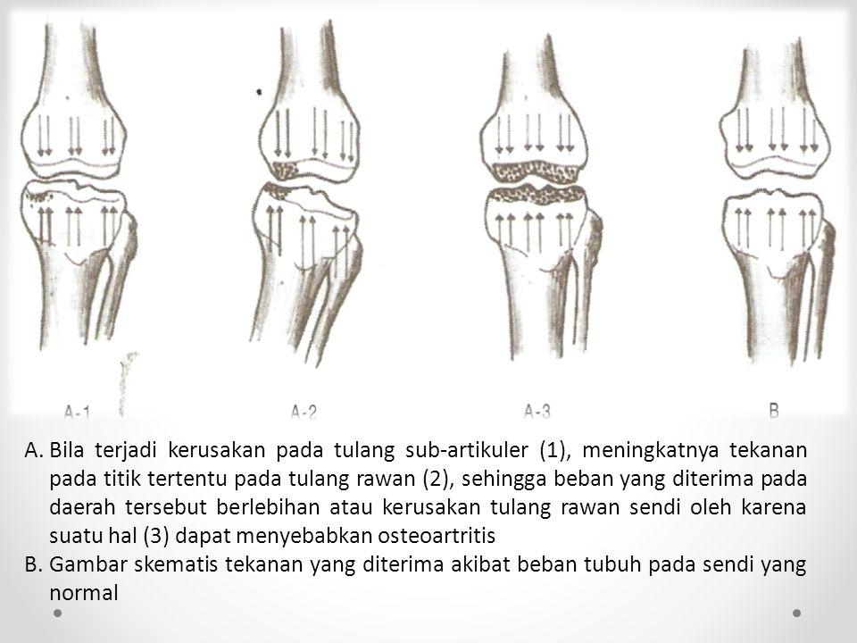 A.Bila terjadi kerusakan pada tulang sub-artikuler (1), meningkatnya tekanan pada titik tertentu pada tulang rawan (2), sehingga beban yang diterima pada daerah tersebut berlebihan atau kerusakan tulang rawan sendi oleh karena suatu hal (3) dapat menyebabkan osteoartritis B.Gambar skematis tekanan yang diterima akibat beban tubuh pada sendi yang normal