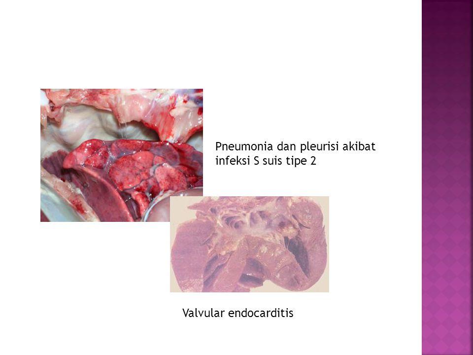 Pneumonia dan pleurisi akibat infeksi S suis tipe 2 Valvular endocarditis