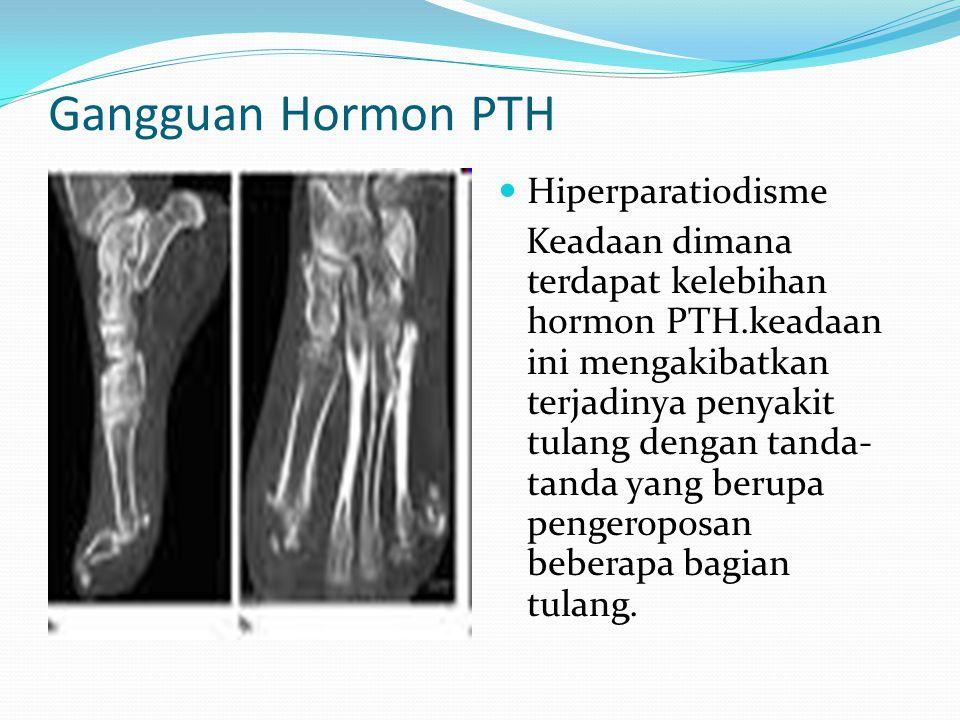 Gangguan Hormon PTH Hiperparatiodisme Keadaan dimana terdapat kelebihan hormon PTH.keadaan ini mengakibatkan terjadinya penyakit tulang dengan tanda-