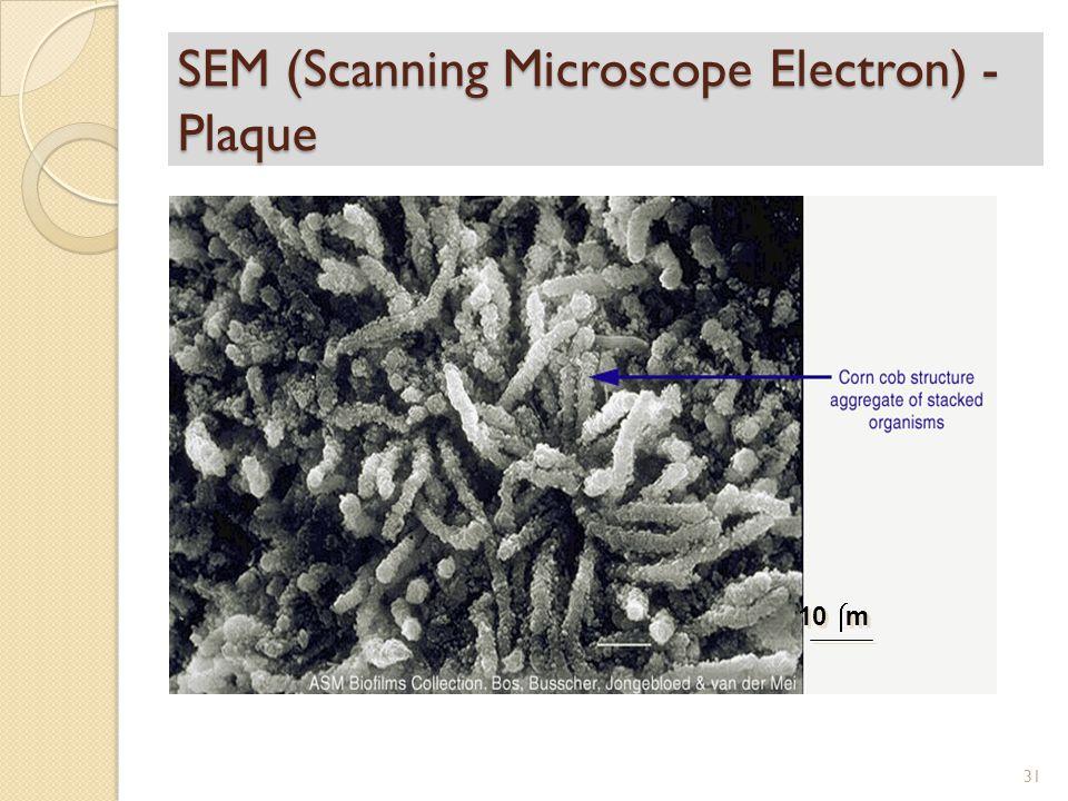 SEM (Scanning Microscope Electron) - Plaque 10  m 31
