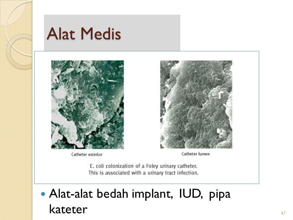 Alat Medis Alat-alat bedah implant, IUD, pipa kateter 47