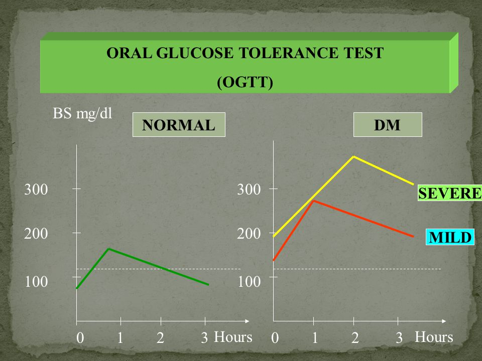 ORAL GLUCOSE TOLERANCE TEST (OGTT) 100 200 300 100 200 300 12301230 Hours BS mg/dl NORMALDM SEVERE MILD