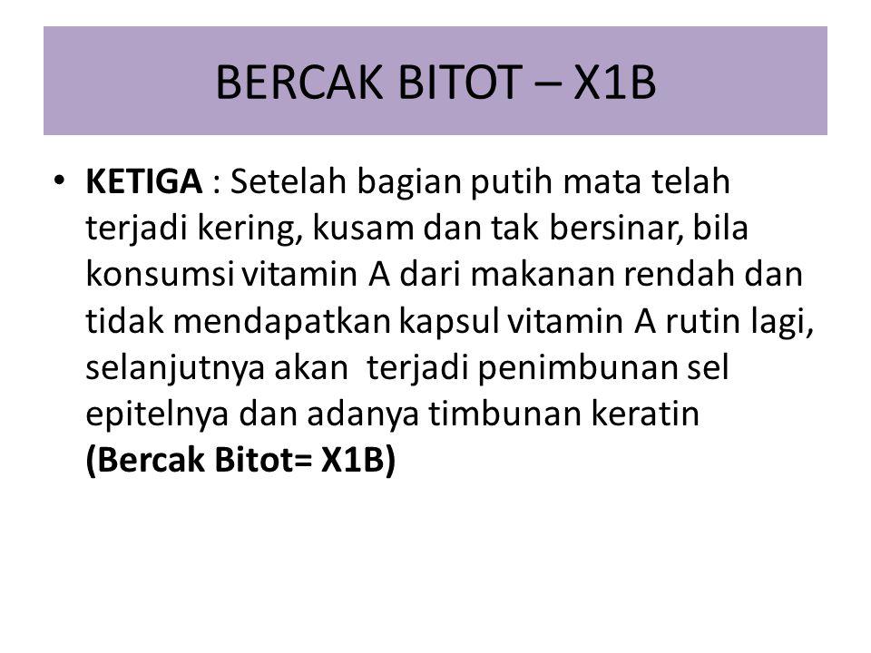 BERCAK BITOT – X1B KETIGA : Setelah bagian putih mata telah terjadi kering, kusam dan tak bersinar, bila konsumsi vitamin A dari makanan rendah dan ti