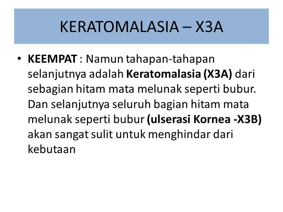 KERATOMALASIA – X3A KEEMPAT : Namun tahapan-tahapan selanjutnya adalah Keratomalasia (X3A) dari sebagian hitam mata melunak seperti bubur. Dan selanju