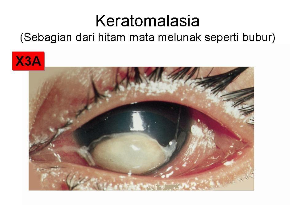 XEROPTALMIA SCAR - XS KELIMA : Akhirnya bola mata mengecil- mengempis (Xeroptalmia Scar- XS) terjadi BUTA YANG PERMANEN.