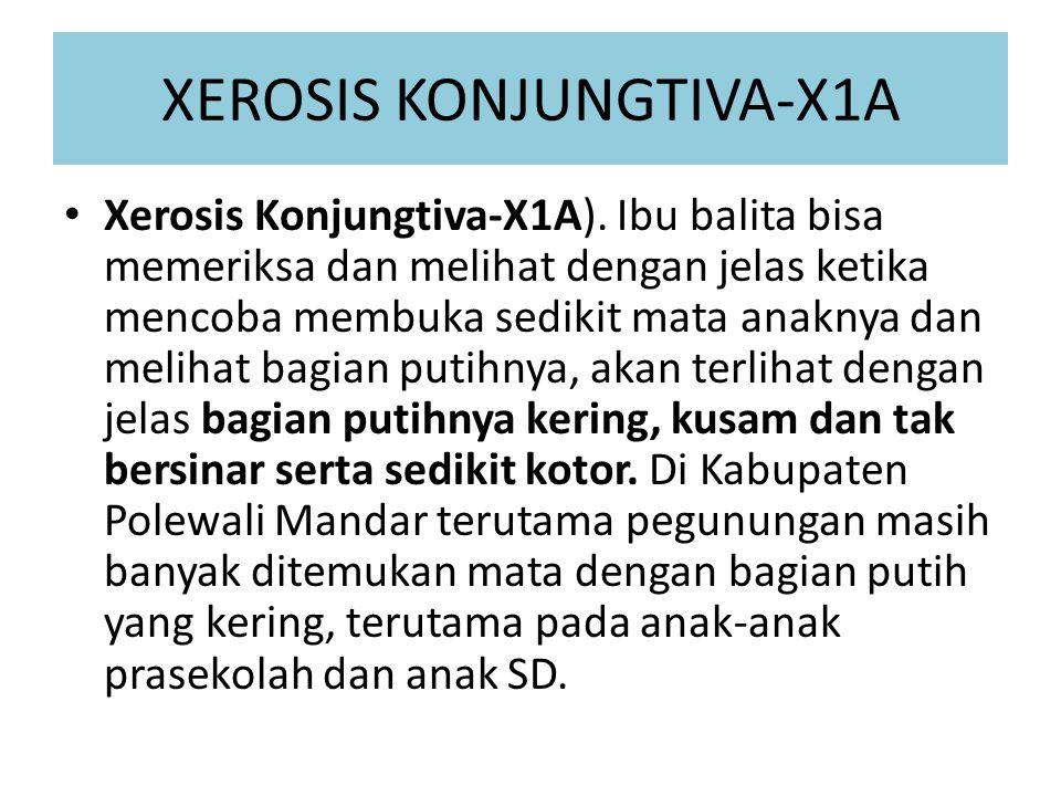 XEROSIS KONJUNGTIVA-X1A Xerosis Konjungtiva-X1A). Ibu balita bisa memeriksa dan melihat dengan jelas ketika mencoba membuka sedikit mata anaknya dan m