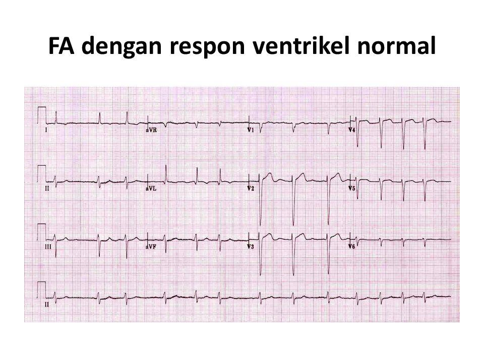 FA dengan respon ventrikel normal