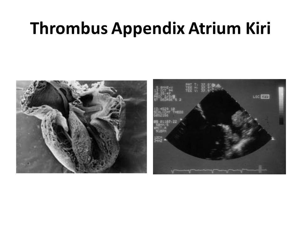 Thrombus Appendix Atrium Kiri