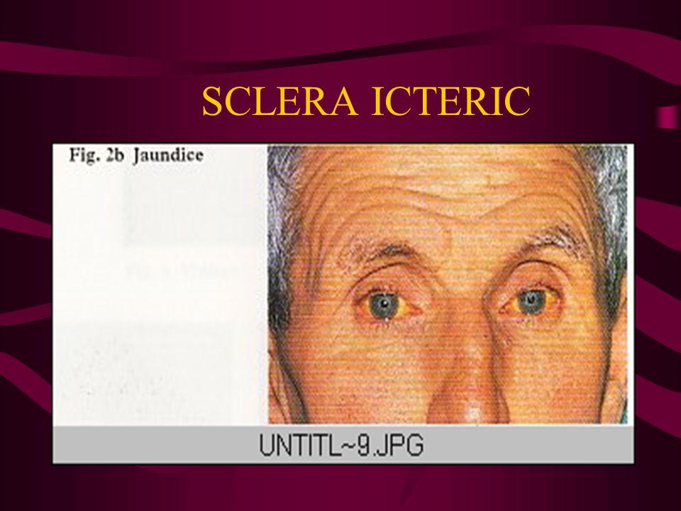 SCLERA ICTERIC