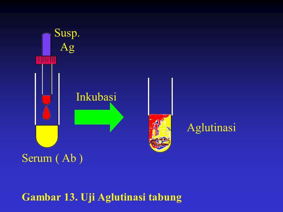 Gambar 13. Uji Aglutinasi tabung Serum ( Ab ) Susp. Ag Inkubasi Aglutinasi