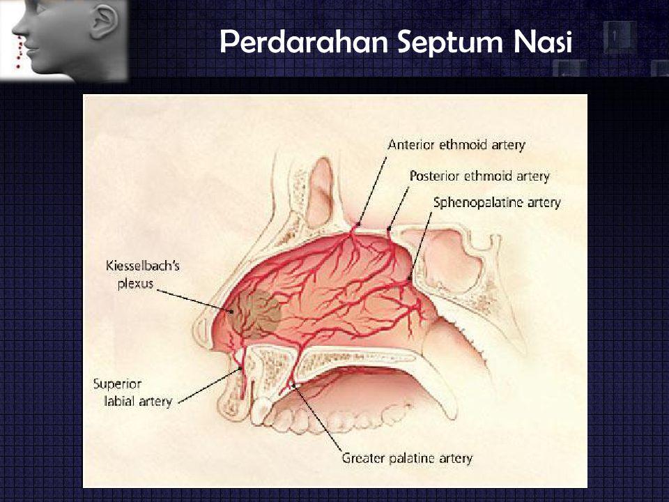 Perdarahan Septum Nasi