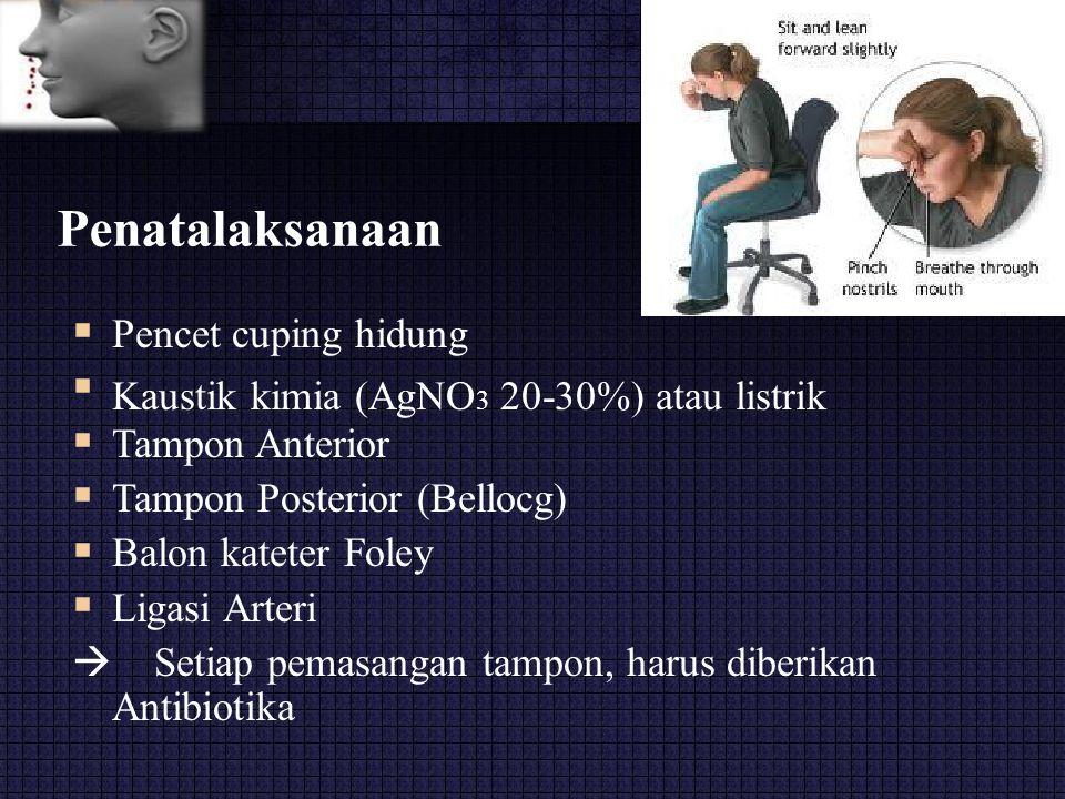 Penatalaksanaan  Pencet cuping hidung Kaustik kimia (AgNO 3 20-30%) atau listrik Tampon Anterior Tampon Posterior (Bellocg) Balon kateter