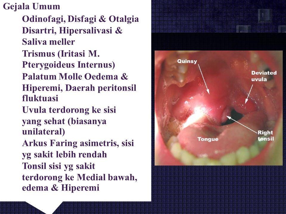 Gejala Umum  Odinofagi, Disfagi & Otalgia Disartri, Hipersalivasi & Saliva meller Trismus (Iritasi M.