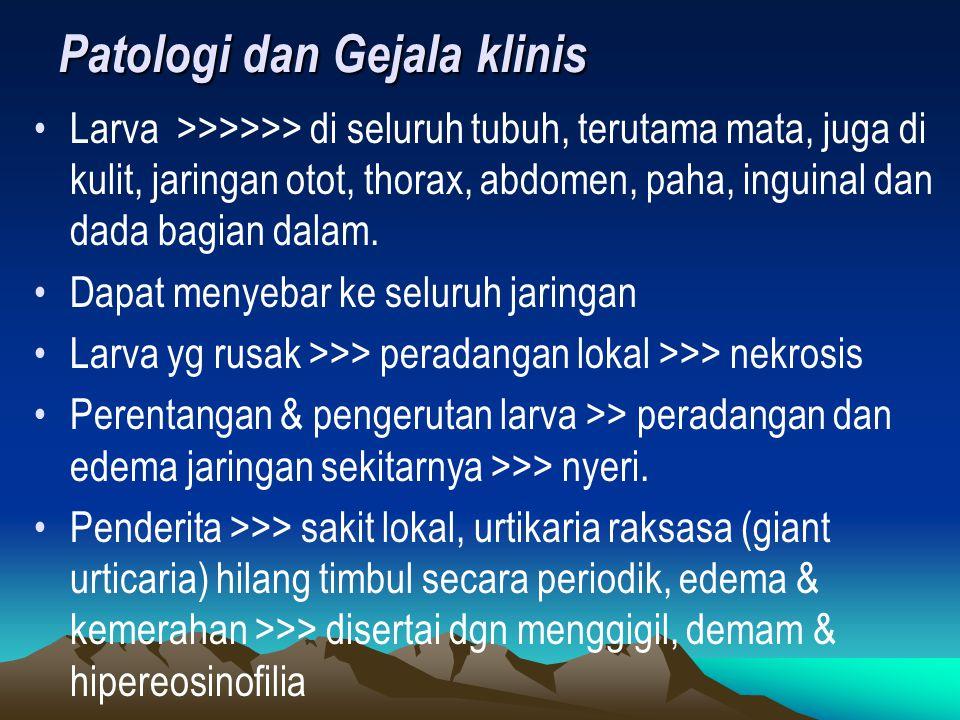 Patologi dan Gejala klinis Larva >>>>>> di seluruh tubuh, terutama mata, juga di kulit, jaringan otot, thorax, abdomen, paha, inguinal dan dada bagian dalam.