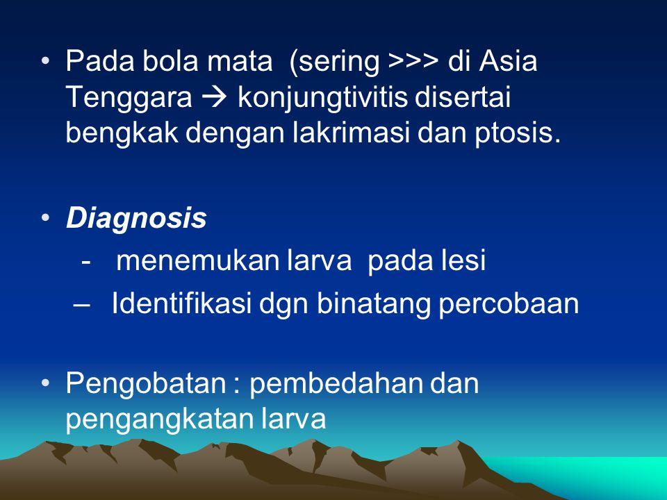 Pada bola mata (sering >>> di Asia Tenggara  konjungtivitis disertai bengkak dengan lakrimasi dan ptosis.