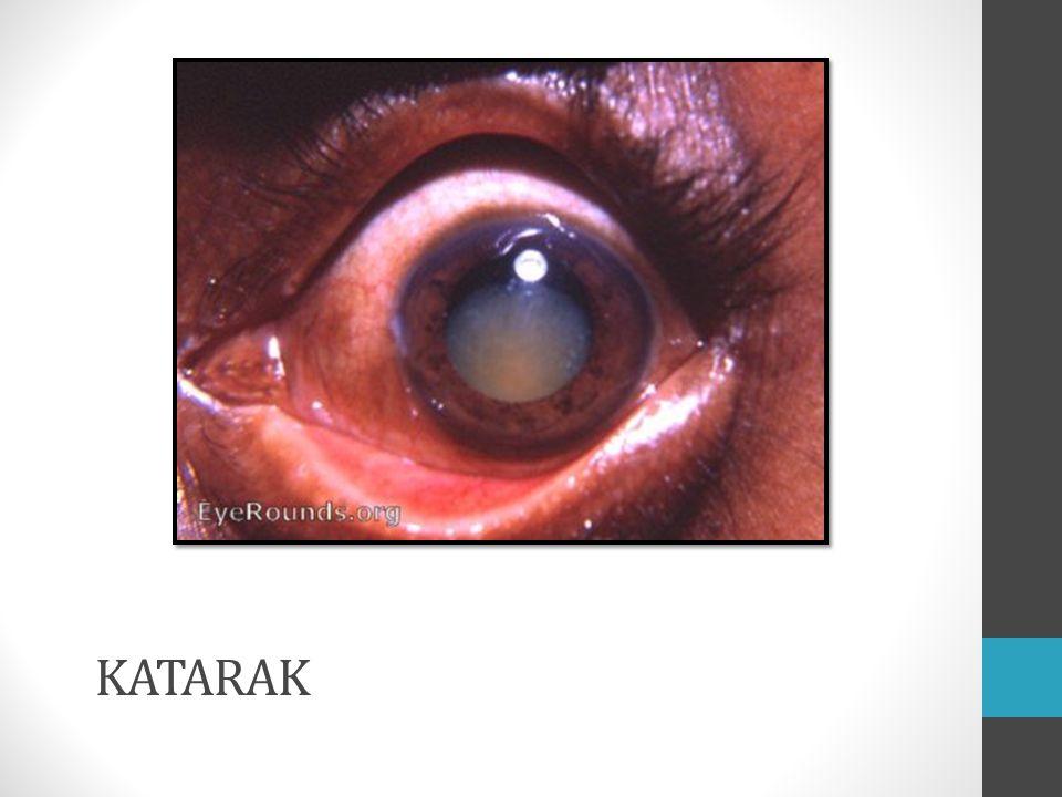 Definisi Kekeruhan lensa yang bersifat progresif Berasal dari katarrhakies  air terjun Faktor paling banyak : penuaan PERDAMI.