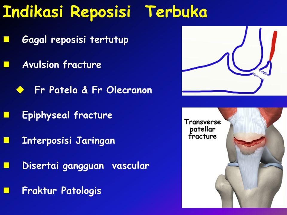 Indikasi Reposisi Terbuka Gagal reposisi tertutup Avulsion fracture  Fr Patela & Fr Olecranon Epiphyseal fracture Interposisi Jaringan Disertai gangg