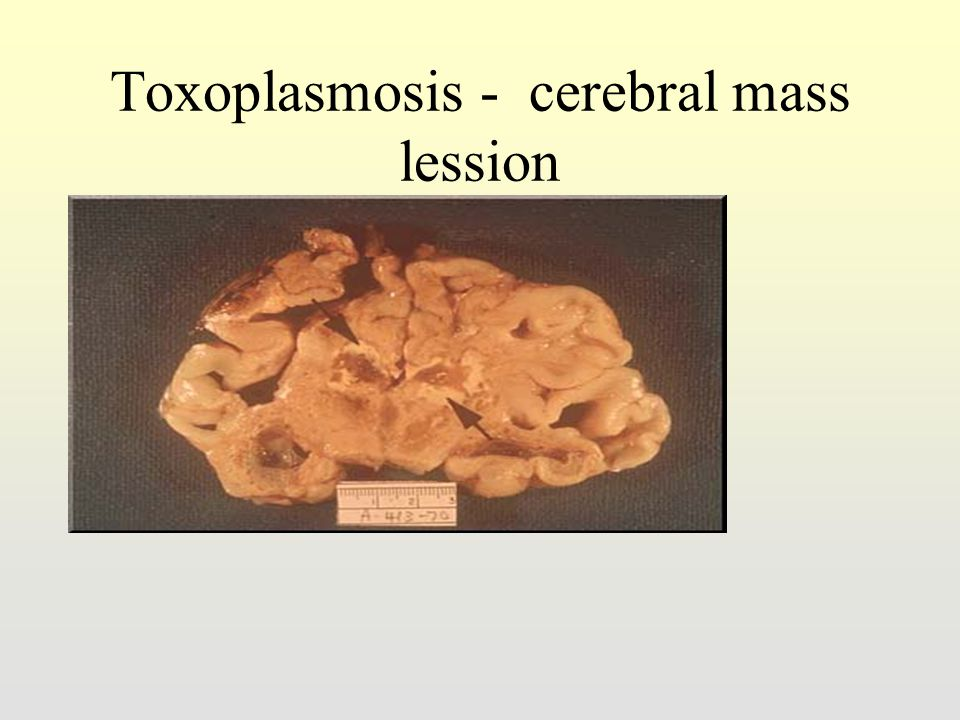 Toxoplasmosis - cerebral mass lession