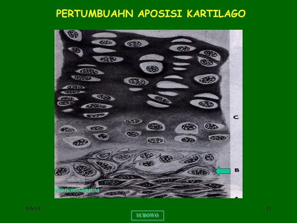 8/6/0411 SUBOWO PERTUMBUAHN APOSISI KARTILAGO PERIKHONDRIUM