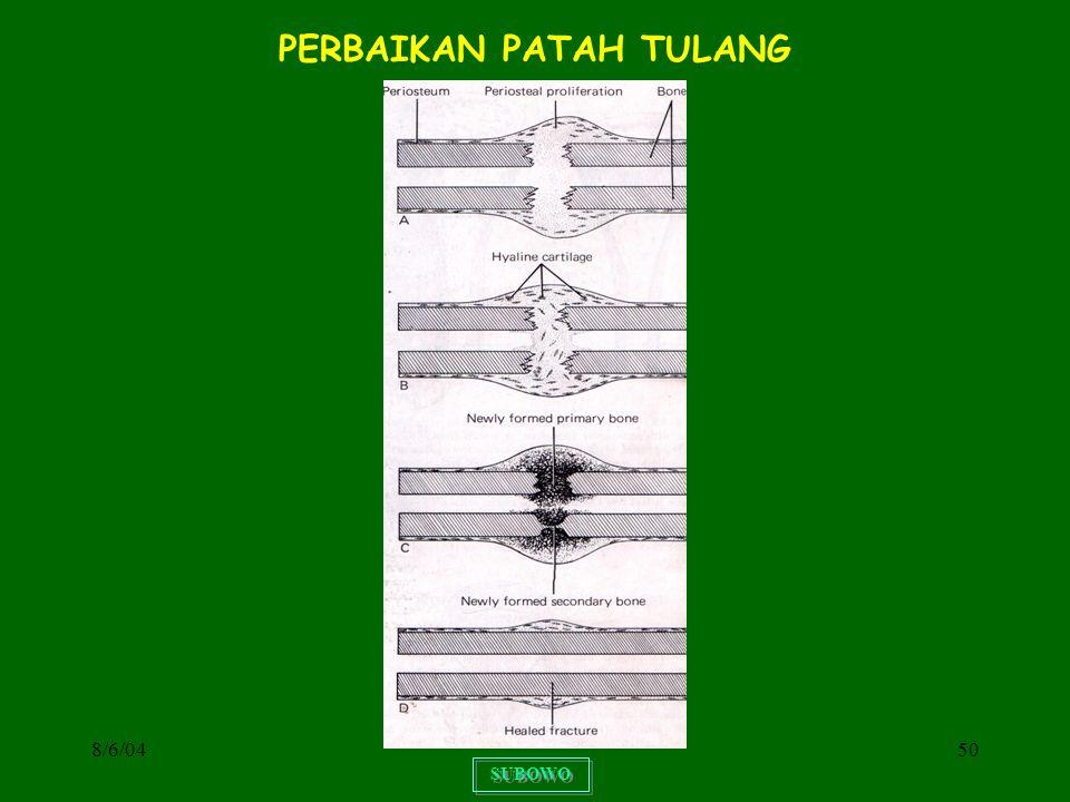 8/6/0450 SUBOWO PERBAIKAN PATAH TULANG