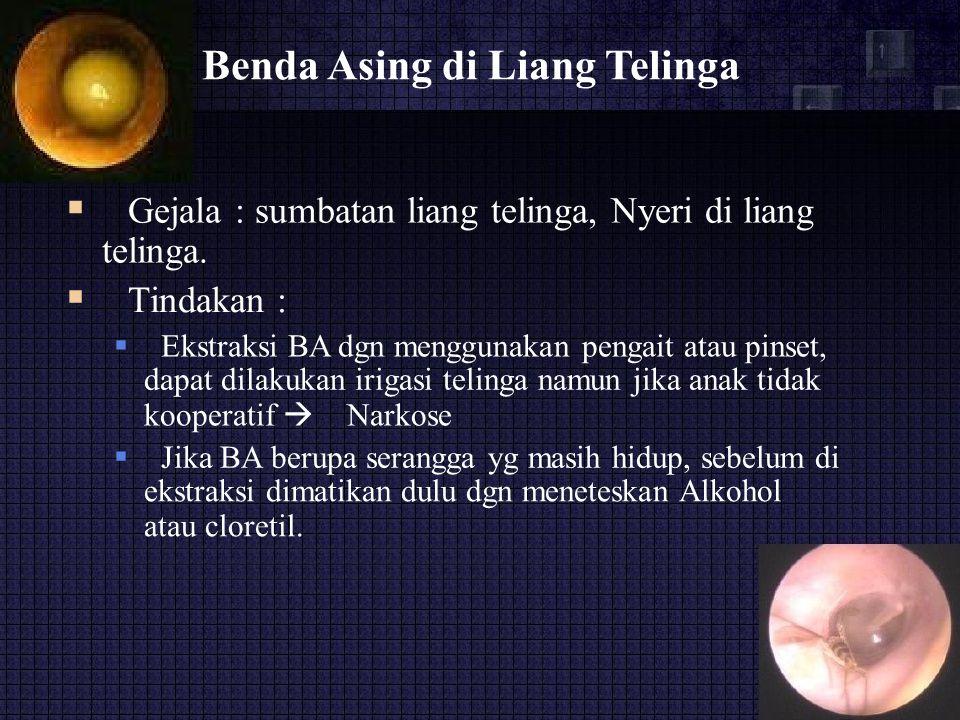 Benda Asing di Liang Telinga  Gejala : sumbatan liang telinga, Nyeri di liang telinga.  Tindakan :  Ekstraksi BA dgn menggunakan pengait atau pi