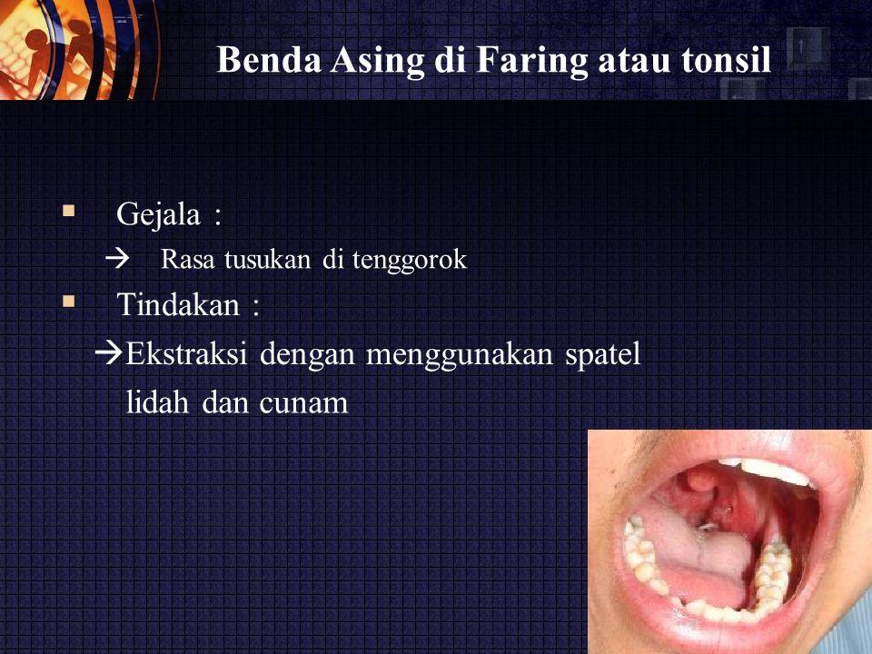 Benda Asing di Faring atau tonsil  Gejala :  Rasa tusukan di tenggorok  Tindakan :  Ekstraksi dengan menggunakan spatel lidah dan cunam
