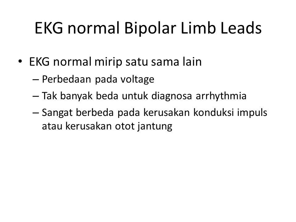 EKG normal Bipolar Limb Leads EKG normal mirip satu sama lain – Perbedaan pada voltage – Tak banyak beda untuk diagnosa arrhythmia – Sangat berbeda pada kerusakan konduksi impuls atau kerusakan otot jantung