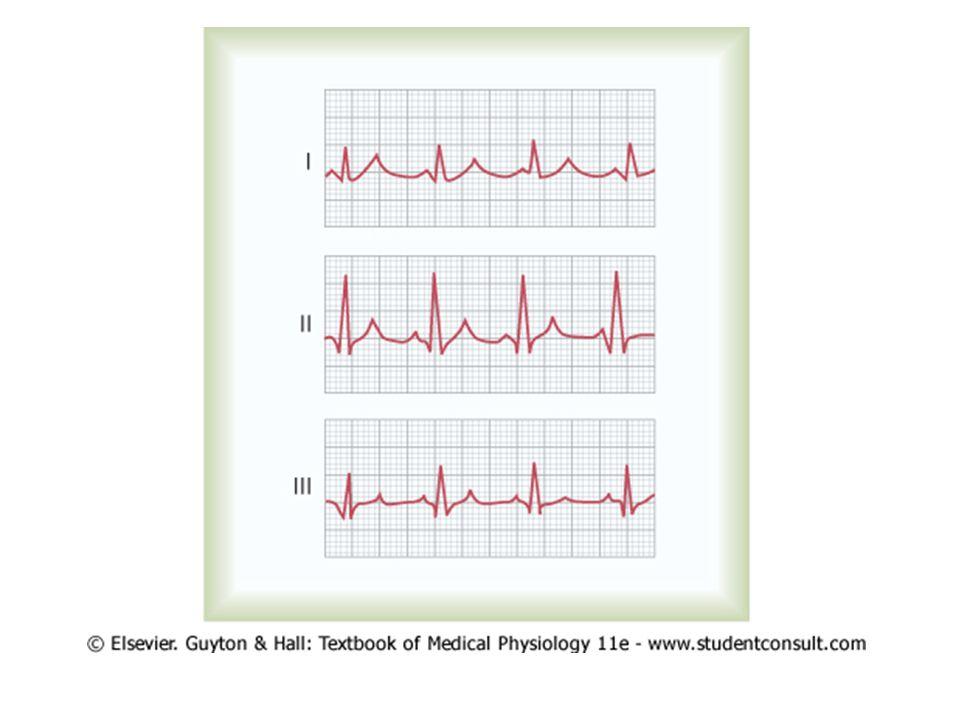 Chest (Precordial) Leads Elektroda positif pada berbagai posisi di dada Elektroda negatif ('indifference') di pergelangan kanan dan kiri, dan tumit kiri Enam standard chest leads – dinding dada depan – V1, V2, V3, V4, V5, V6