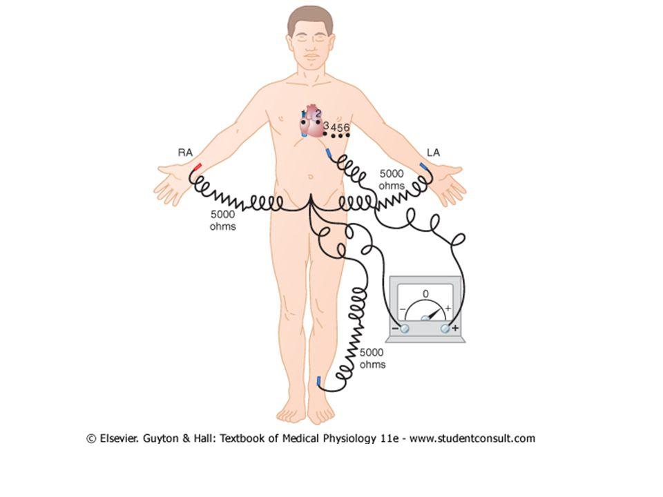 Permukaan jantung dekat dgn dinding dada – Rekaman dari potensial listrik otot jantung tsb – Sedikit perubahan ventrikel  perubahan nyata pada chest leads Lead V1 dan V2 – QRS umumnya negatif: elektroda dekat basis – Basis adalah tempat elektronegatif pada hampir semua proses depolarisasi ventrikel