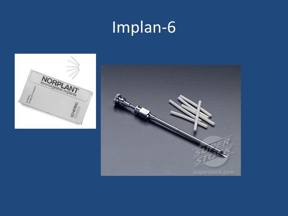Implan-6