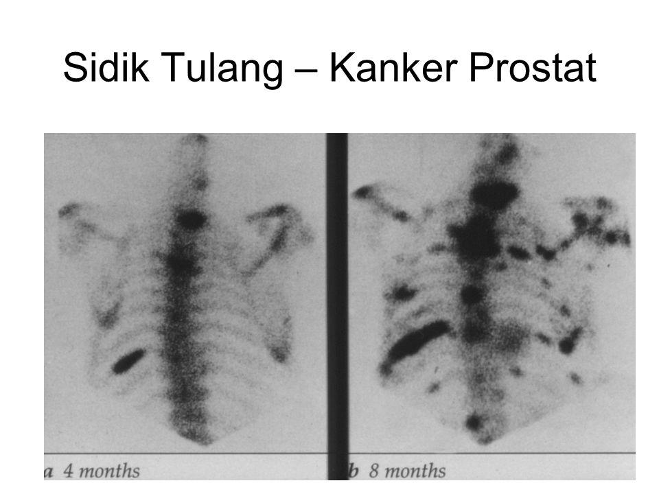 Sidik Tulang – Kanker Prostat