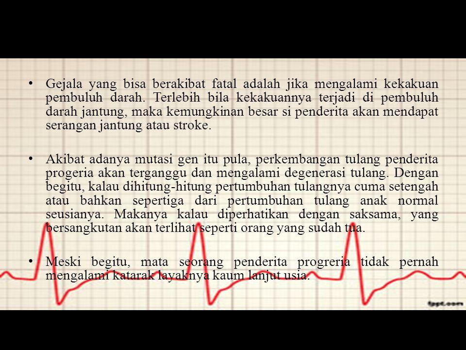 Gejala yang bisa berakibat fatal adalah jika mengalami kekakuan pembuluh darah. Terlebih bila kekakuannya terjadi di pembuluh darah jantung, maka kemu