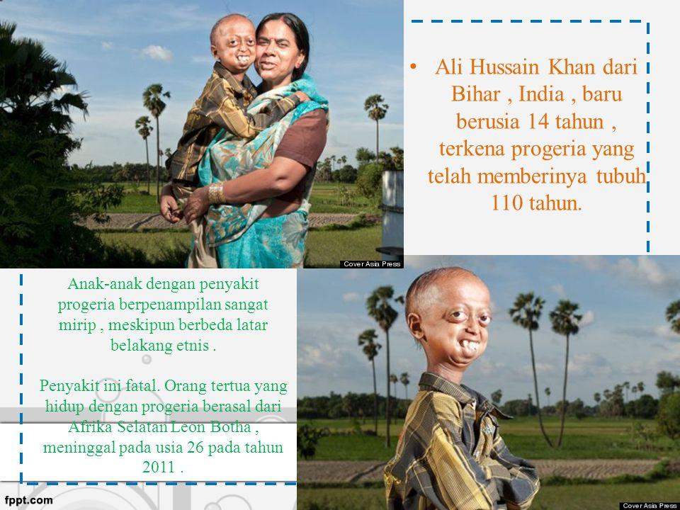 Anak-anak dengan penyakit progeria berpenampilan sangat mirip, meskipun berbeda latar belakang etnis. Penyakit ini fatal. Orang tertua yang hidup deng