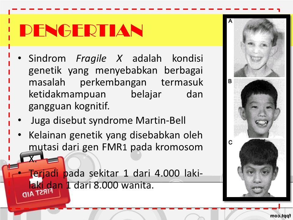 PENGERTIAN Sindrom Fragile X adalah kondisi genetik yang menyebabkan berbagai masalah perkembangan termasuk ketidakmampuan belajar dan gangguan kognit