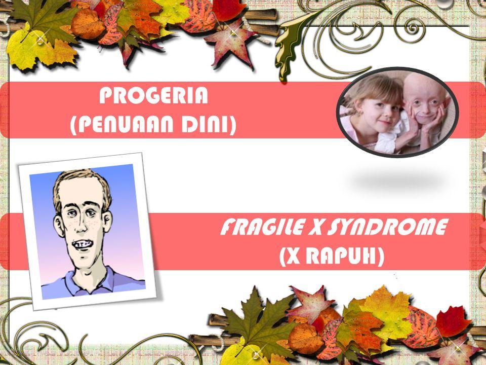 FRAGILE X SYNDROME (X RAPUH) PROGERIA (PENUAAN DINI)