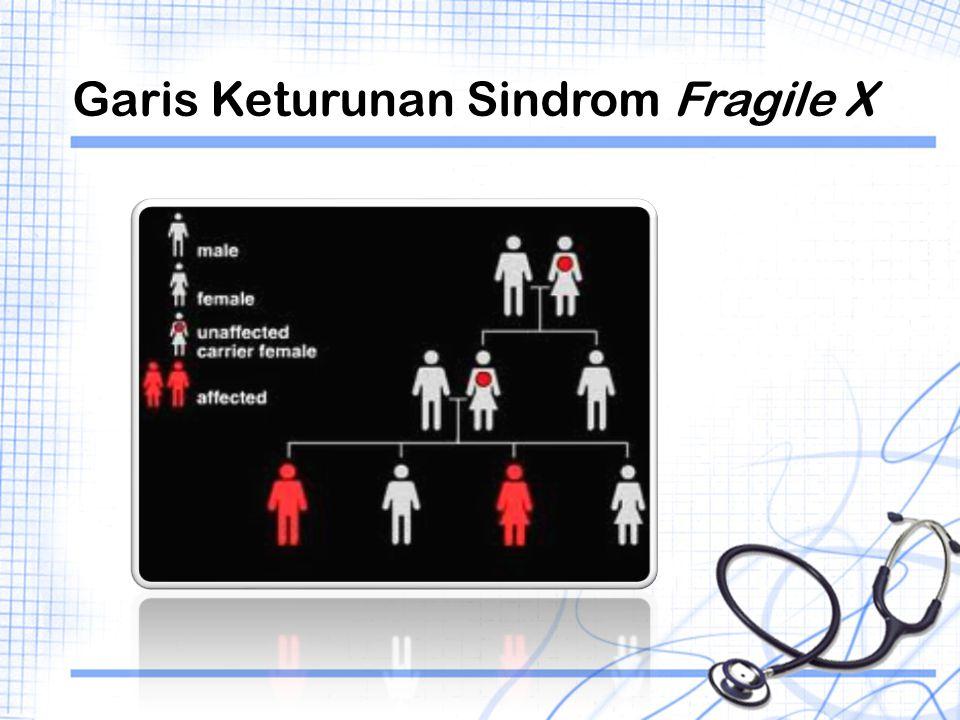 Garis Keturunan Sindrom Fragile X