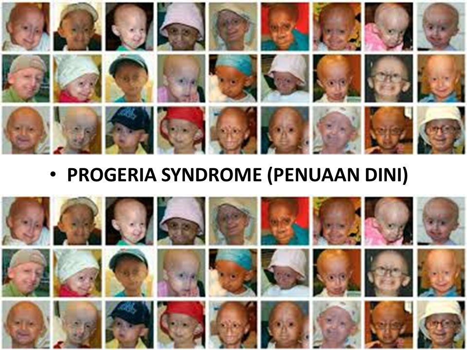 Hingga saat ini tidak ada terapi atau pengobatan sama sekali bagi para penderita progeria.