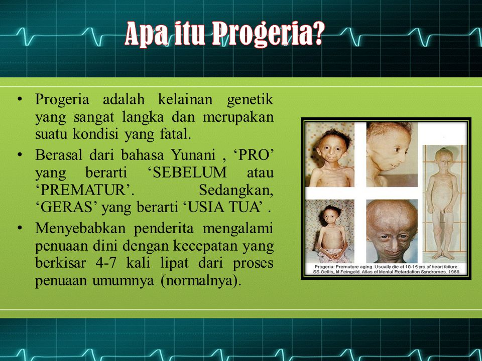 Progeria adalah kelainan genetik yang sangat langka dan merupakan suatu kondisi yang fatal. Berasal dari bahasa Yunani, 'PRO' yang berarti 'SEBELUM at
