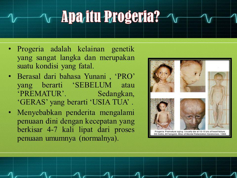 Contoh: Seorang anak berumur 10 tahun menderita penyakit progeria, maka penampilannya akan terlihat seperti orang yang sudah berusia 40-70 tahun.